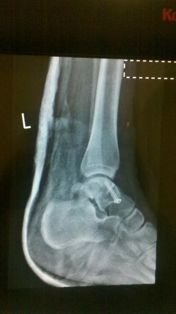 3 screws in there somewhere.